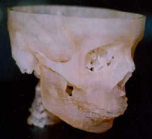 Fabbed model of human skull